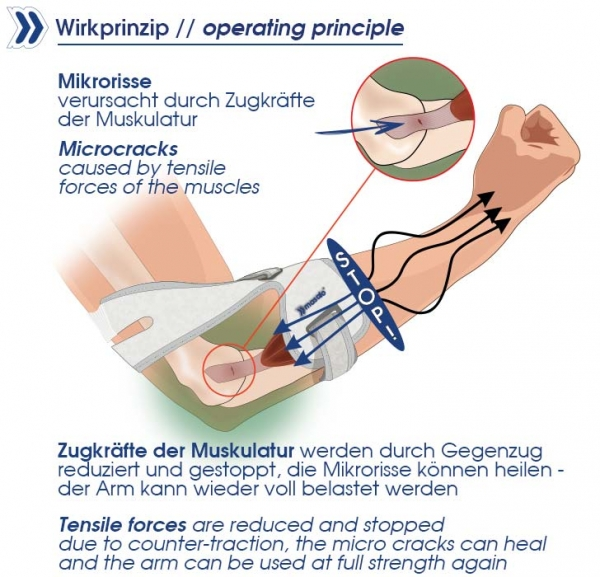 Masalo Cuff MED counter-traction operating principle