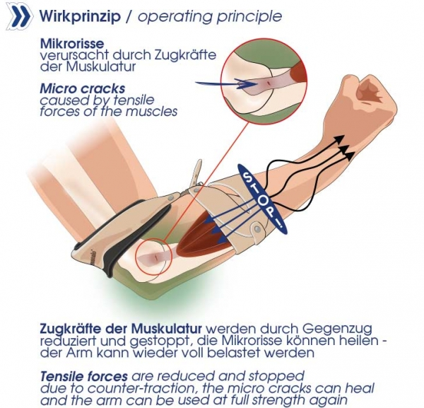 Masalo_Cuff_tennis-elbow_golfers-elbow_operating principle