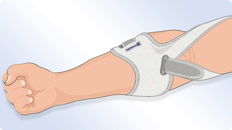 Illustration of the fitted Masalo Cuff MED against tennis elbow