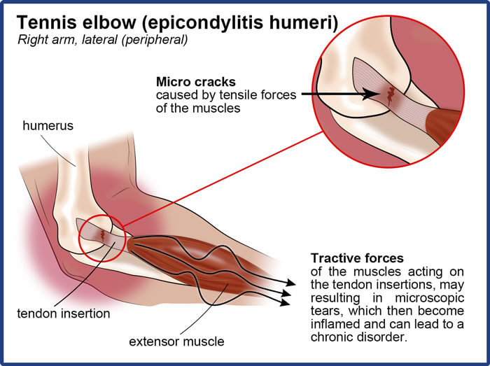 The cause of the epicondylitis with microcracks and inflamed tendon insertions