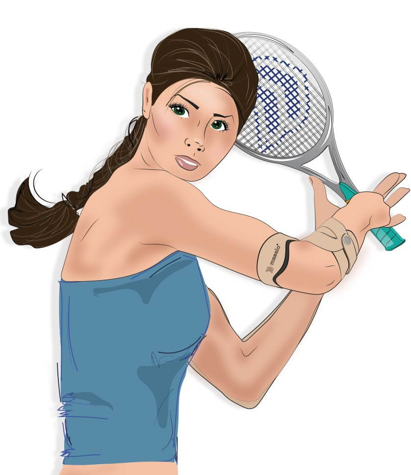 Illustration of the masalo cuff against tennis elbow, golfer's elbow, epicondylitis on a woman playing tennis