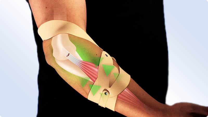 The unique counter-traction principle of the masalo cuff protects the tendon insertions immediately and supports the healing process