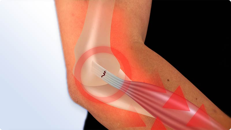 Tensile forces are the main cause for tennis elbow, golfer's elbow, epicondylitis, mousearm